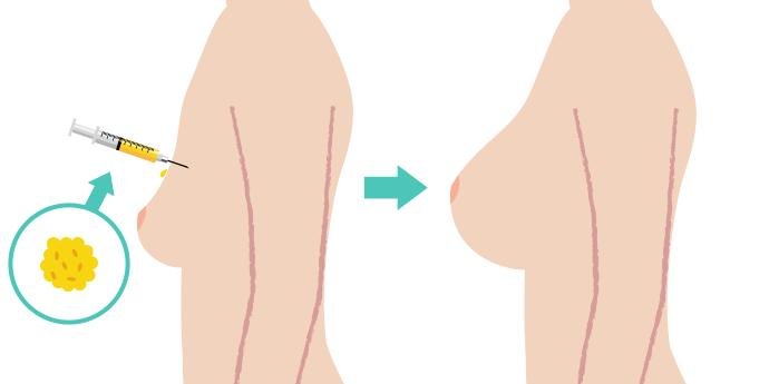 脂肪注入豊胸術