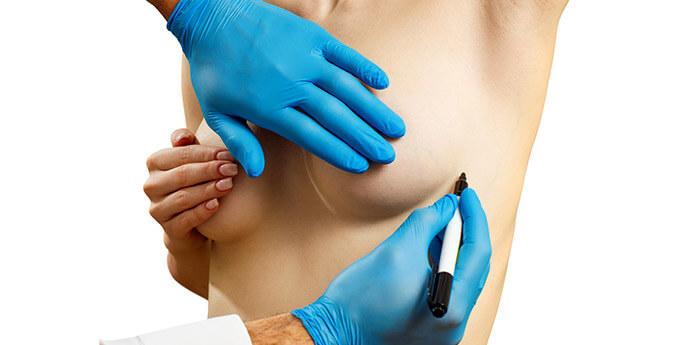 ヒアルロン酸注入豊胸術