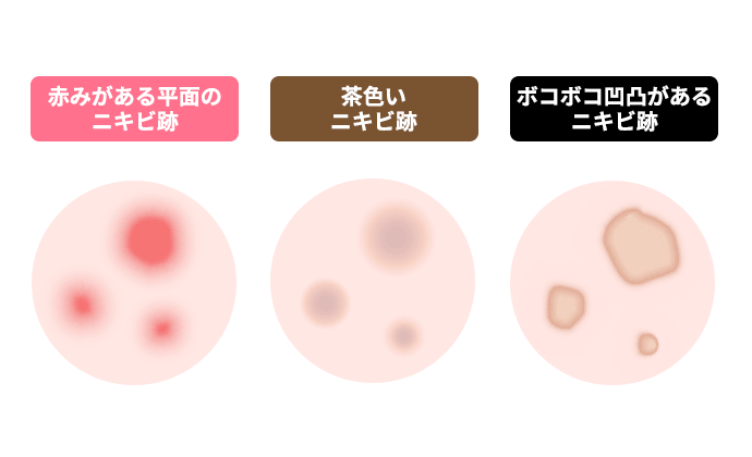 3種類のニキビ跡