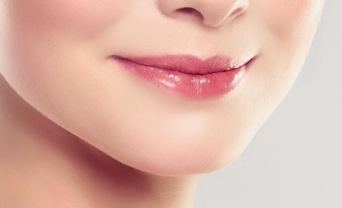 ⑥整形で憧れのアヒル口「口角挙上術」