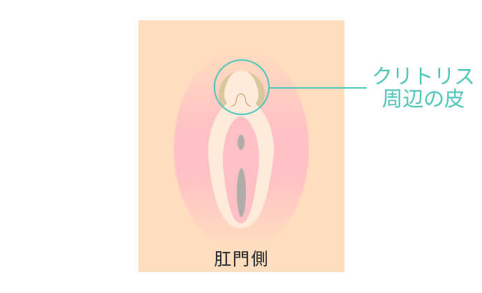 クリトリス包茎の治療(陰核包皮除去)