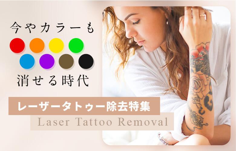 タトゥーを消したい! レーザー除去クリニックおすすめプラン特集